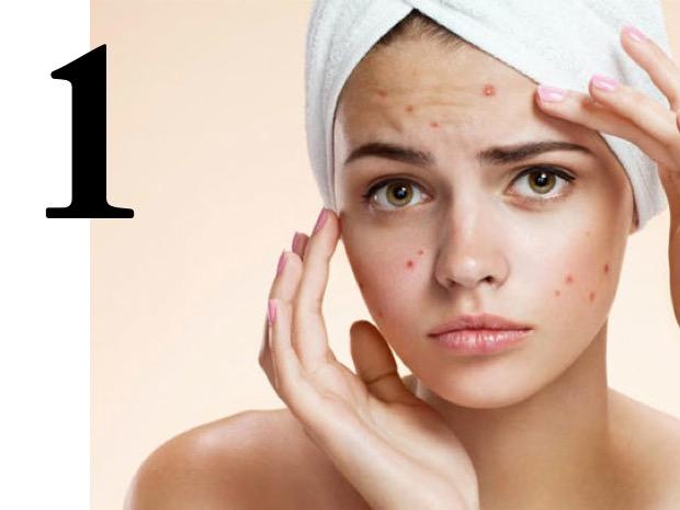 consigli e cure contro l'acne