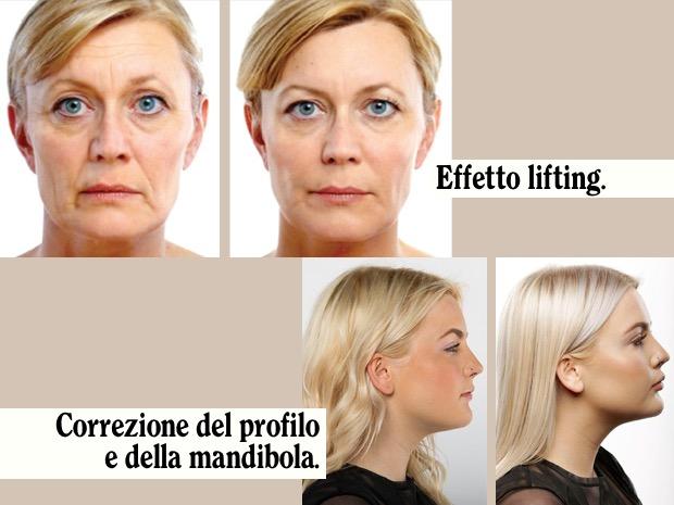 chirurgia viso profilo