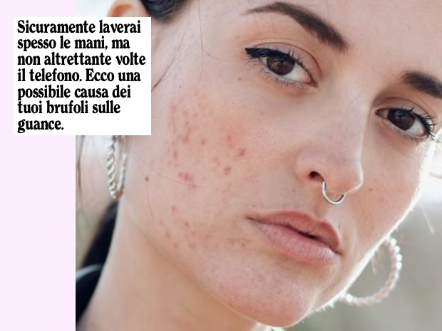 acne sulle guance
