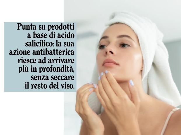 acido salicilico acne