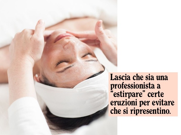 acne estetista