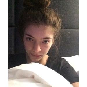 rs_600x600-140211125417-600.Lorde-Instagram-Acne-Cream.ms.021114 (1)